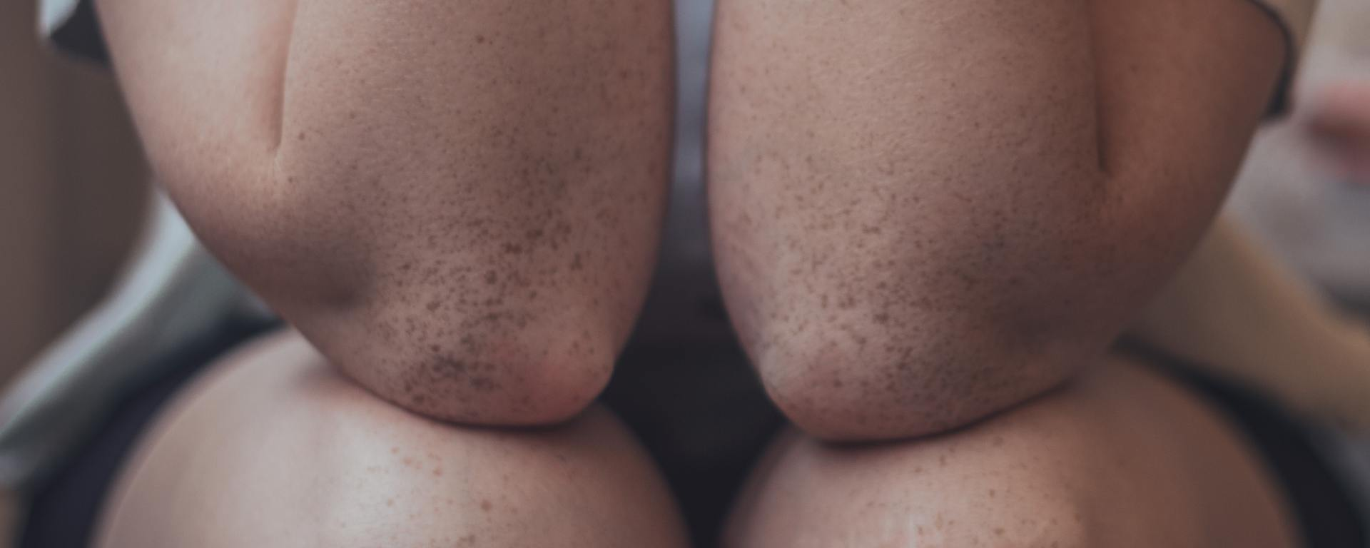 A person's bent elbows resting on their knees.